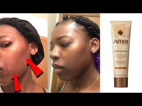 HOW TO FADE ACNE SCARS ft. AMBI Fade Cream
