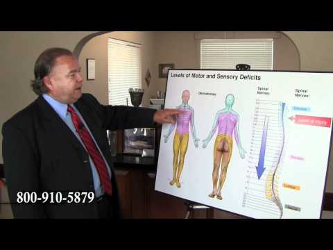 Paralyzed From Chest Down - NC Accident Attorney Brent Adams Explains