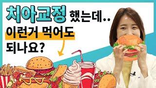 치아교정 당일에 햄버거 먹어도 되나요?