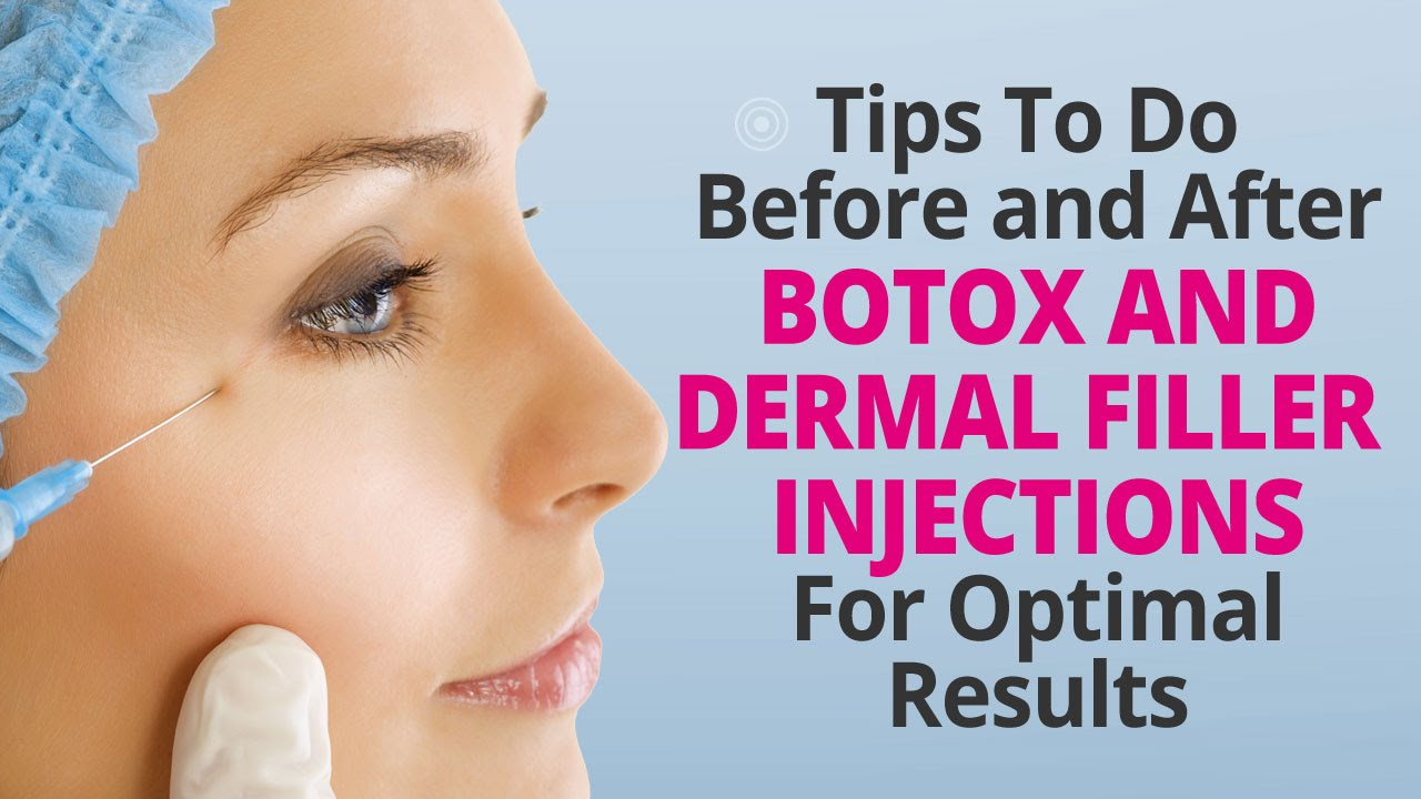 Tips to do before and after botox and dermal filler injections for tips to do before and after botox and dermal filler injections for optimal results youtube solutioingenieria Choice Image