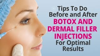 Tips To Do Before and After Botox and Dermal Filler Injections For Optimal Results Thumbnail