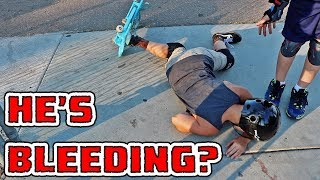 KID FACE PLANTS ON CEMENT