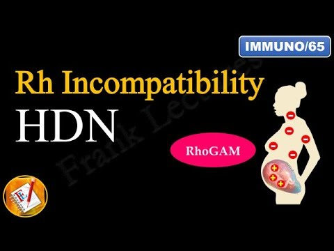 Rh Incompatibility: Hemolytic Disease of the Newborn (Erythroblastosis fetalis) (FL-Immuno/65)