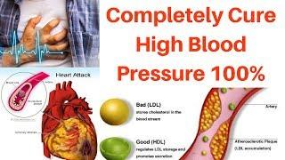 High BLOOD Pressure Cure (100%) | Permanently Cure High Blood Pressure