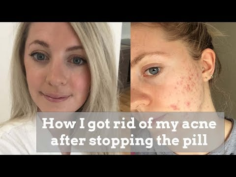 hqdefault - Acne After Stopping Cilest
