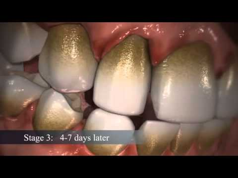 How Does Dental Plaque Form - YouTube