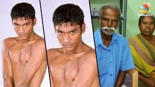 Birthmarks removed from Dhanush's body, suggest medical reports | Paternity Case