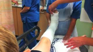 Broken bones getting plastered