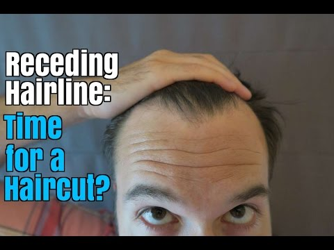 Receding Hairline: How to Know It's Time for a Haircut ...