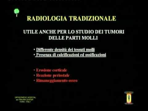 patologia muscolo-articolare.avi