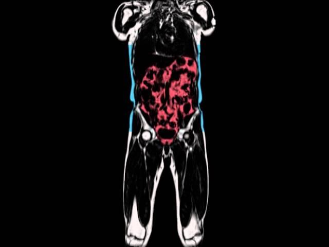 Abdominal scan