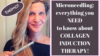 CIT/MICRONEEDLING for MATURE SKIN or ACNE SCARS! You need to know about COLLAGEN INDUCTION THERAPY