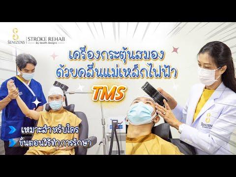 การกระตุ้นสมองด้วยคลื่นแม่เหล็กไฟฟ้า (TMS) ช่วยฟื้นฟูผู้ป่วยโรคหลอดเลือดสมอง