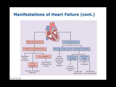 Chapter 20 Heart Failure and Circulatory Shock BIO216