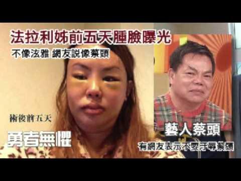 風華診所 - 法拉利姐婷婷整形日記 - YouTube