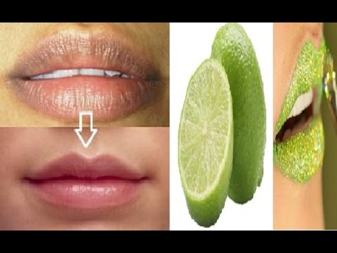 Ketahuilah 5 Cara Menghilangkan Flek Hitam Di Bibir Dengan Pasta