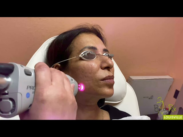 Laser Skin Tightening | Best Medspa BodyRx Louisville, KY
