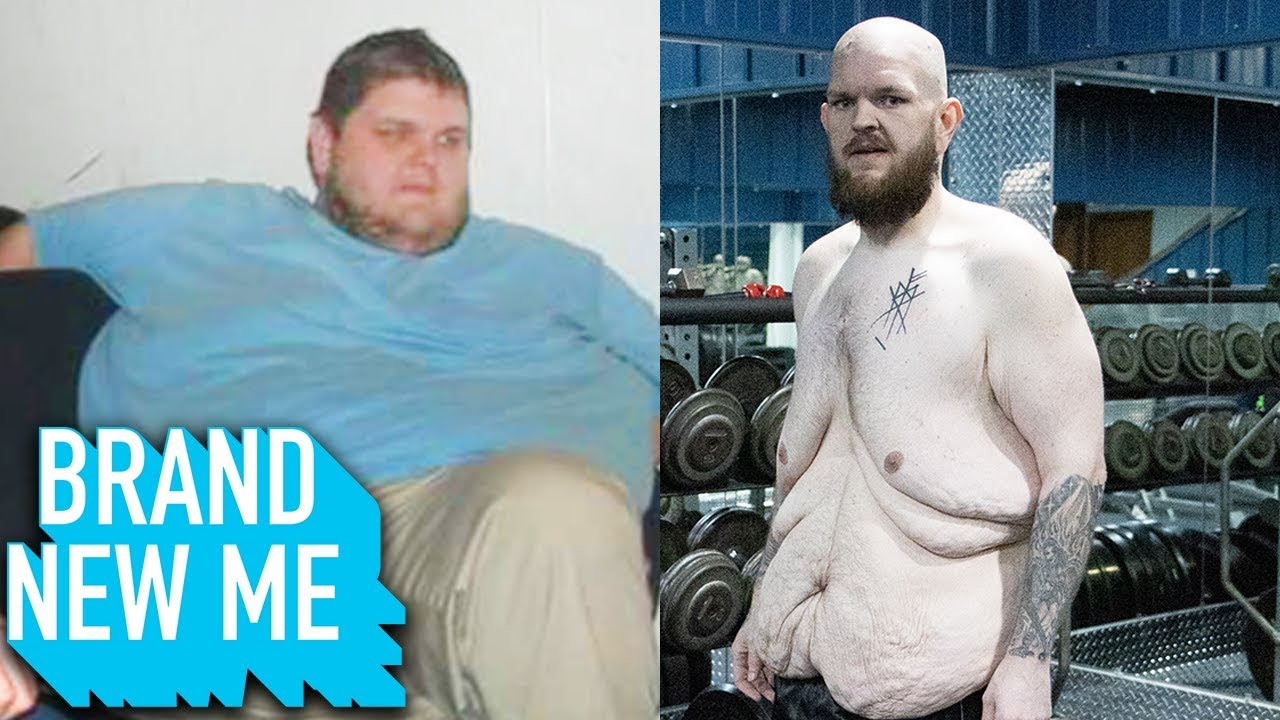 I Lost 227lbs And I'm PROUD Of My Excess Skin | BRAND NEW ME