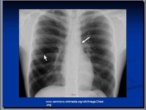 Chest x-ray Superior mediastinal structures - YouTube