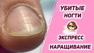 Наращивание на убитых ногтях Сложные ногти Быстрое наращивание