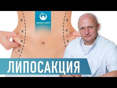 Что такое ЛИПОСАКЦИЯ? Лазерная липосакция, вибролипосакция, ультразвуковая липосакция. Хирург Щевцов