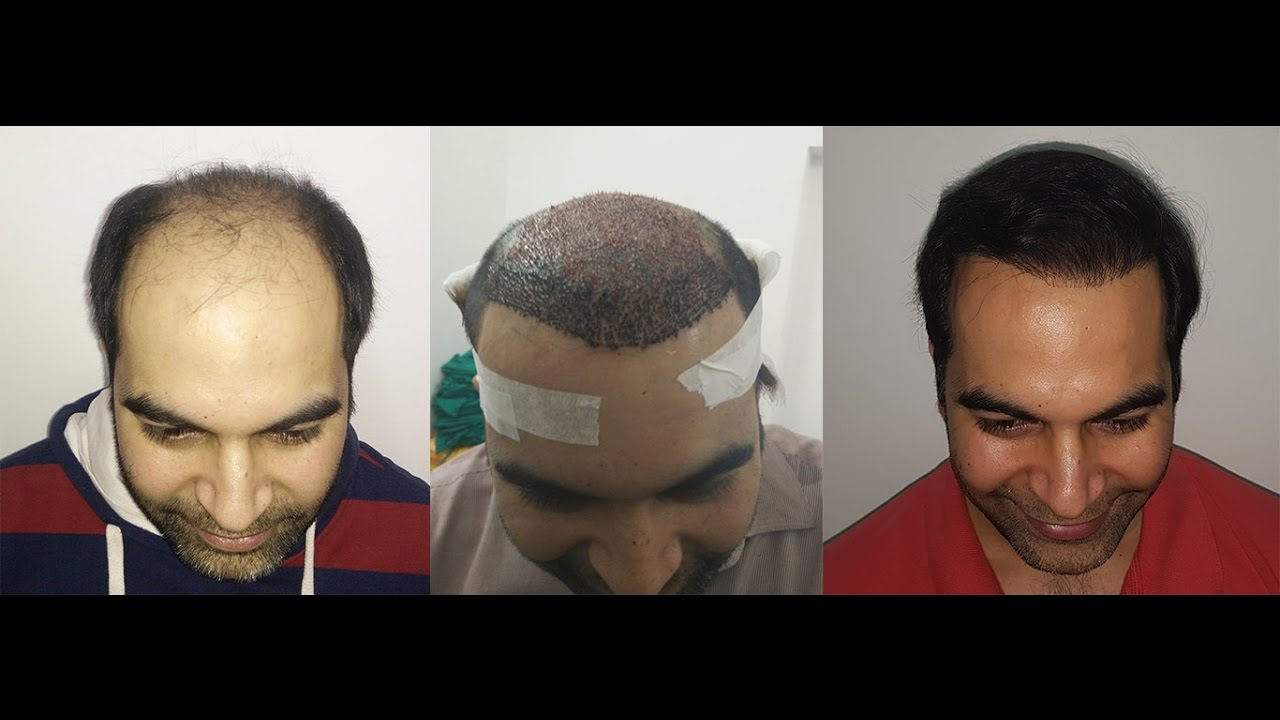 hair style images for hair transplant 6000 grafts fue method dr dutt hair 6000