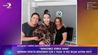2. Sayfa: Bülent Ersoy'a benzemek için 10 kez ameliyat oldu!