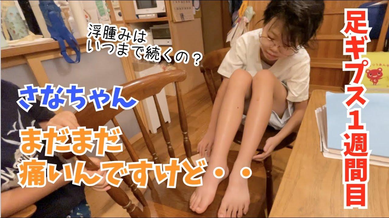 【Vlog 】足ギプスになって1週間目。浮腫みはいつまで続くのやら・・😂