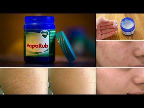 8 Surprising Uses of Vicks Vaporub