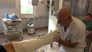 Attelle plâtrée pour une rupture du tendon d'Achille