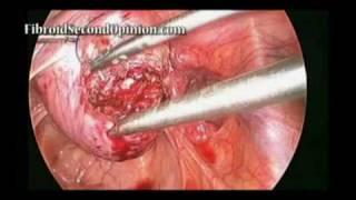 Laparoscopic Myomectomy for Fibroids