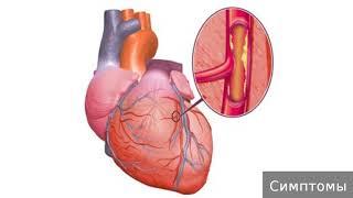 Ишемическая болезнь сердца. Как лечить ишемическую болезнь сердца.