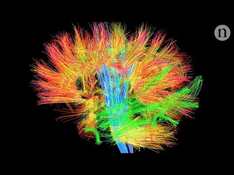 New brain map developed using real patients and machine learning (Tomorrow Daily 396)