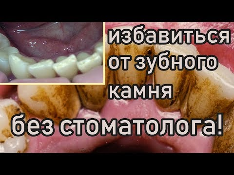 Как избавиться от зубного камня дома