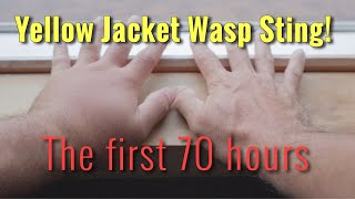YELLOW JACKET WASP STING: The first 70 hours
