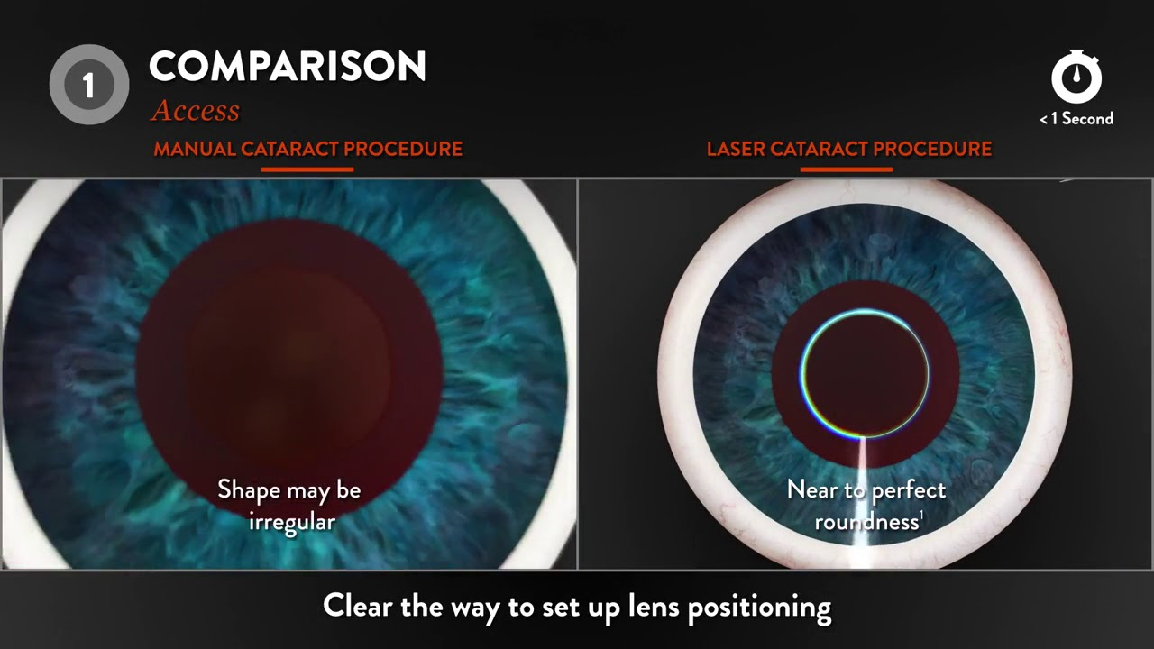 Femto-second laser-assisted cataract surgery - Ramsay Sime
