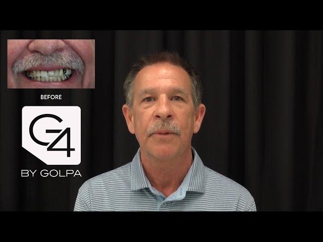 G4 By Golpa - Dallas - Patient: Rick E