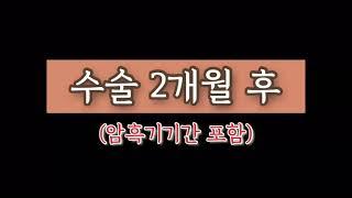 [#2] 여성 헤어라인 모발이식 후기 2개월~3개월차 …