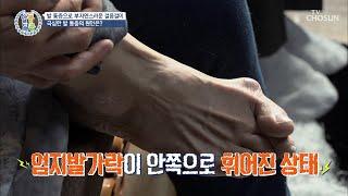 심한 통증과 발 변형 부르는 「무지 외반증」 TV CH…