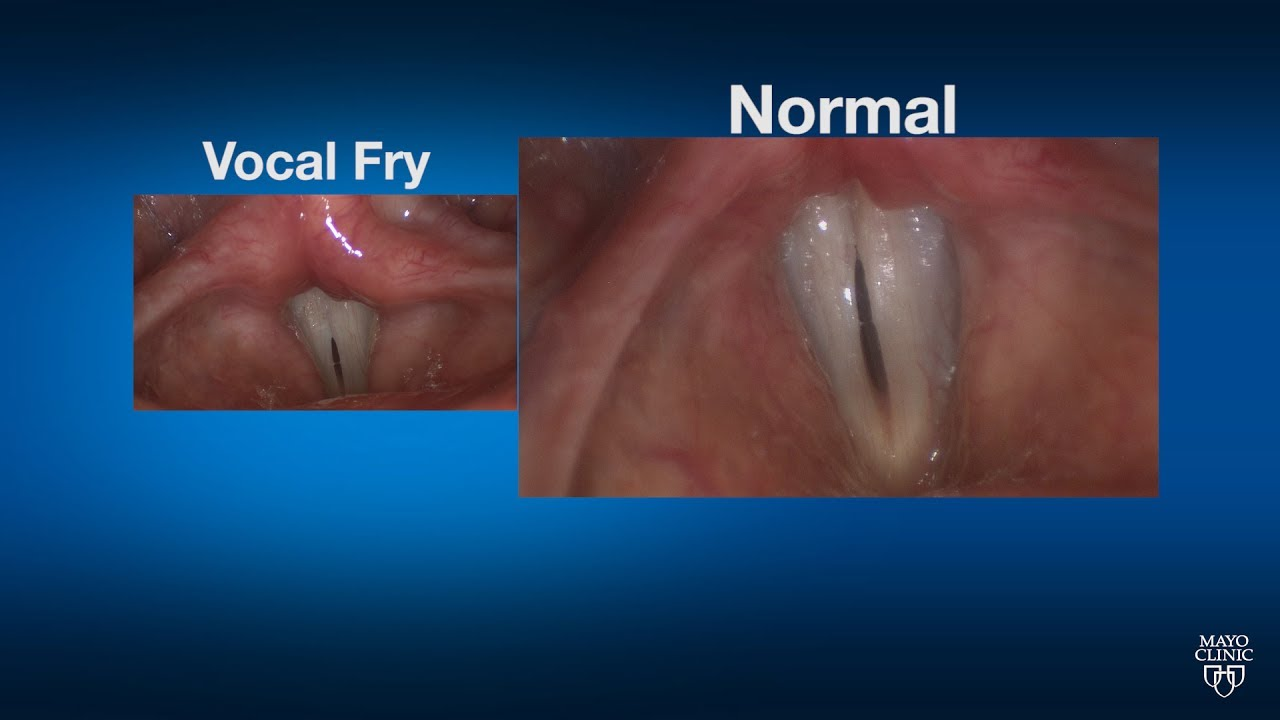 Mayo Clinic Minute: What happens when you vocal fry