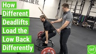 How Different Deadlifts Load the Back Differently | Ep 107 | Movement Fix Monday | Dr. Ryan DeBell