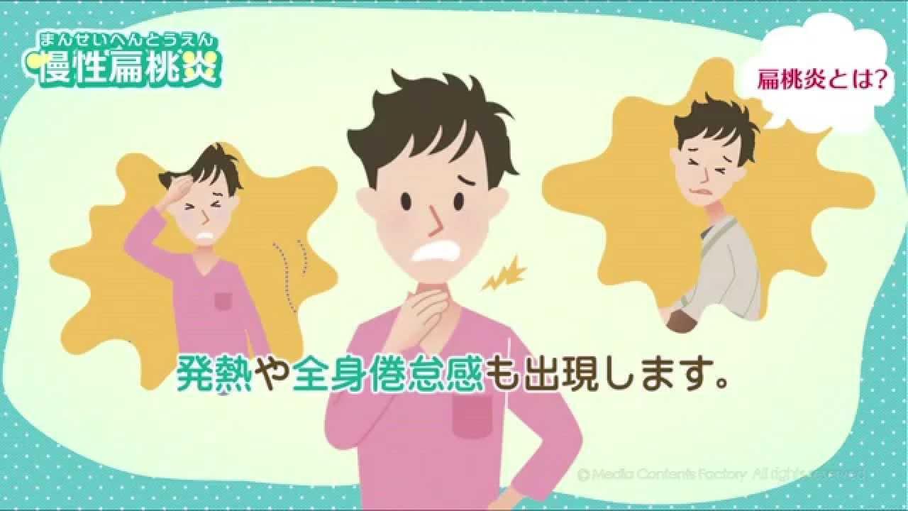 うつる 炎 扁桃 急性 腺