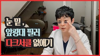눈밑필러, 앞광대필러 다크써클 없애기 1탄 (feat.…