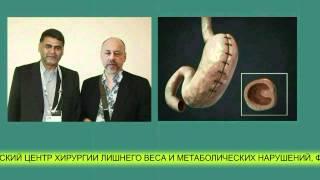 похудение, СЛИВ-2, беременность.mp4