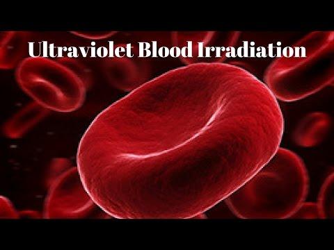 Ultraviolet Blood Irradiation