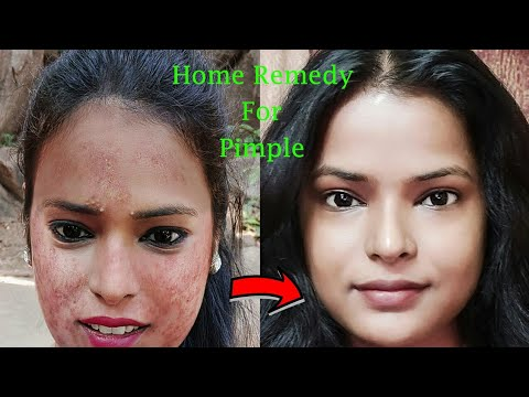 Treat Acne At Home Instant Results How To Remove Pimples