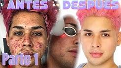 hqdefault - Cirugias Para Borrar Cicatrices De Acne