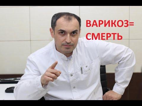 Самое опасное при варикозе. Флеболог. Москва.