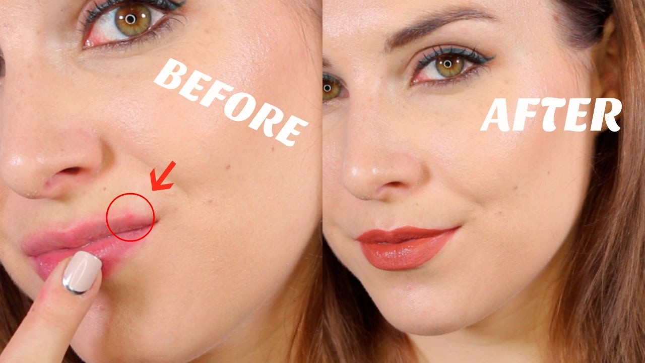 How To Cover Lip Acne Bailey B Youtube