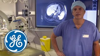 Complex radiofrequency ablation with GE's Innova IGS 540 and LOGIQ E9 XDclear 2.0